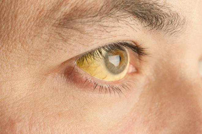 признаки болезни печени у мужчин