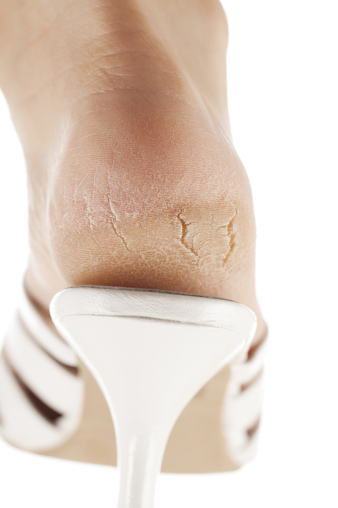 трещины на пятках лечение