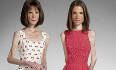 33-летние близняшки стали жертвами анорексии из-за спора