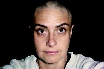11 июня 2005. Волосы начинают выпадать: я их сбриваю.