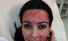 Ким Кардашьян решилась на кровавую процедуру