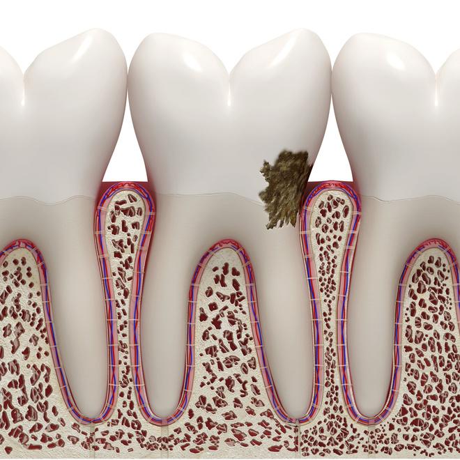 налет на зубах избавится