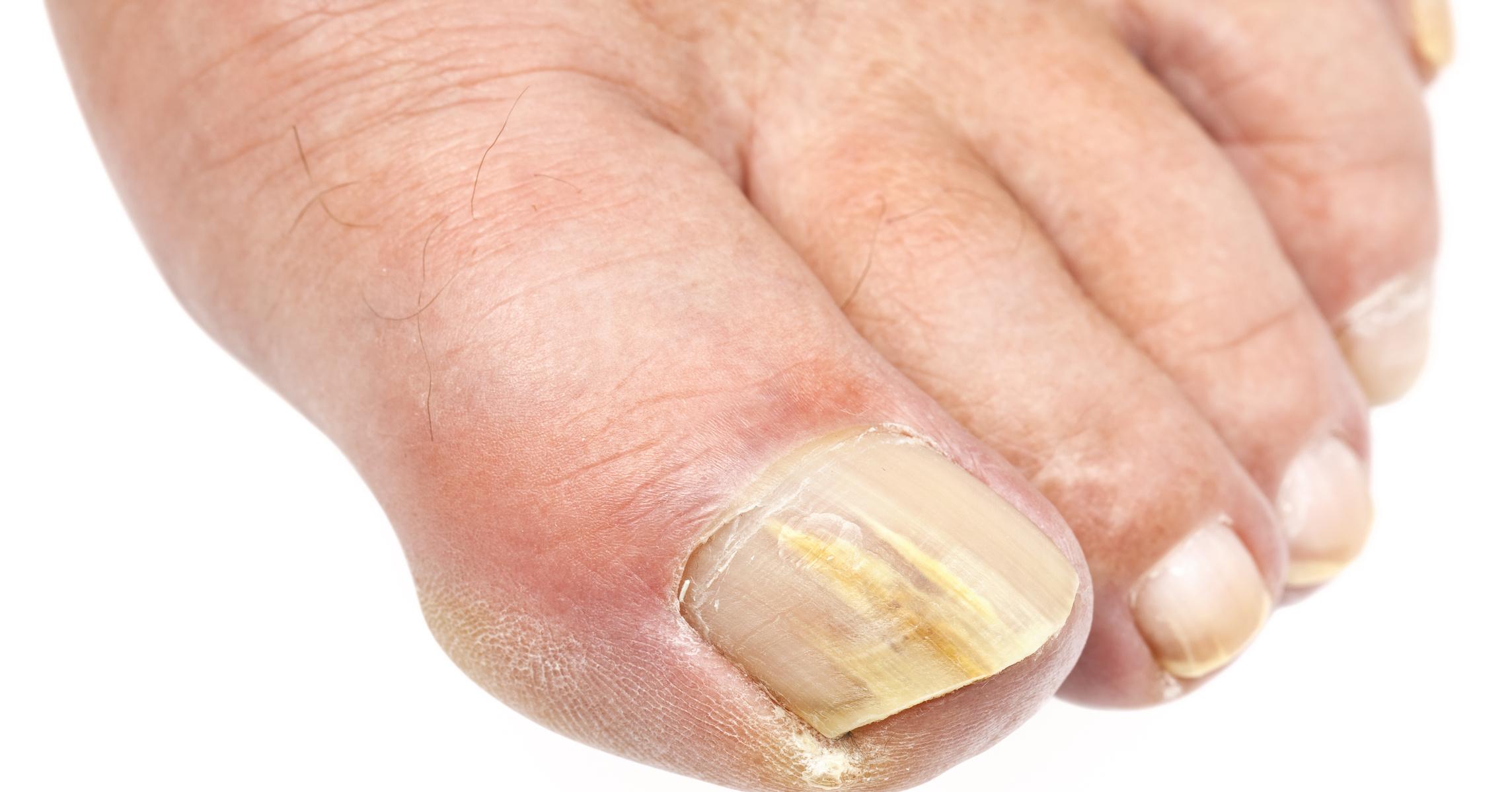 Лечение грибка ногтей аппаратом витязь