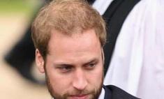 Косметические компании озаботились лысиной принца Уильяма