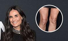 Деми Мур показала изуродованные коленки