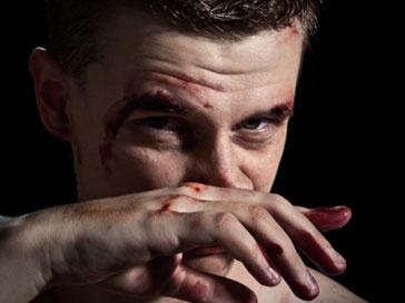 Нападавшие сломали нос Игорю Пыхалову