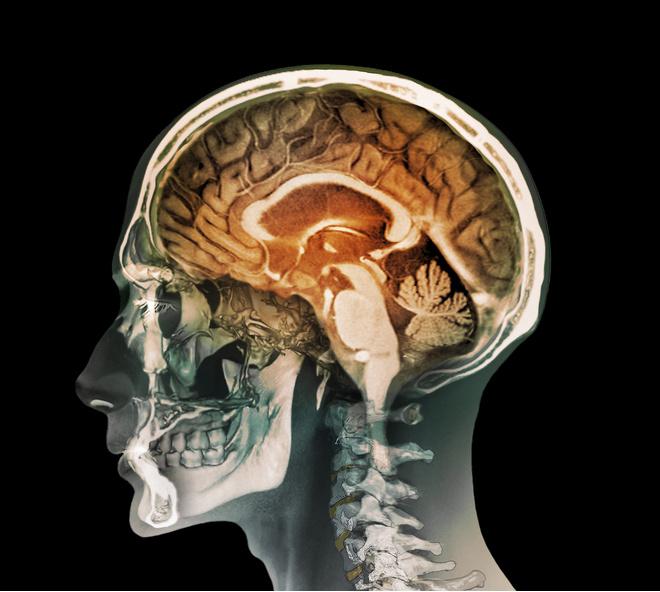 как проверить состояние сосудов головного мозга