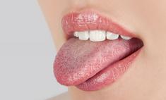 Белый налет на языке – признак заболеваний органов ЖКТ