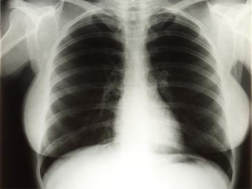 Рентген груди Мерилин Монро