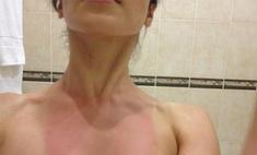 Сати Казанова получила сильный солнечный ожог