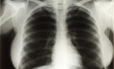 Рентген груди Мерилин Монро продали на аукционе