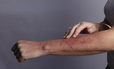 Возвращаем коже комфорт: как снять зуд при аллергии