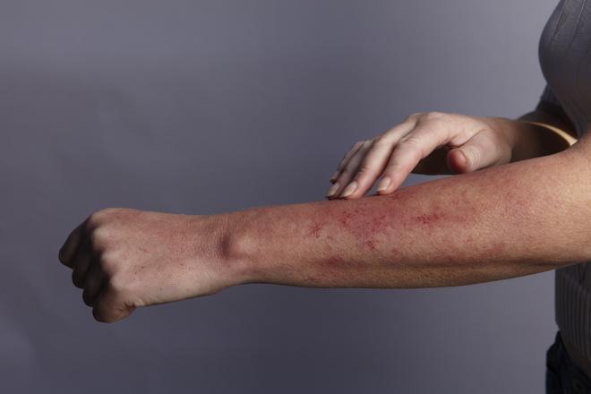 чем снять зуд при аллергии