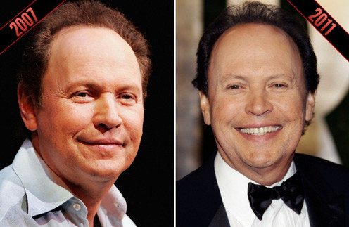 Билли Кристал (Billy Crystal)