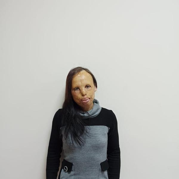 Фото №1 - «Бабушка показывала меня за деньги»: как живет молодая россиянка с полностью обгоревшим лицом
