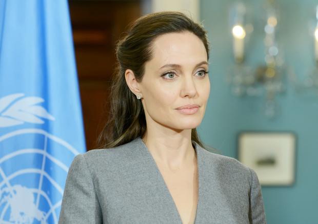 Фото №3 - Врачи, психолог и сексолог о том, какой женщиной стала Анджелина Джоли после удаления груди и яичников