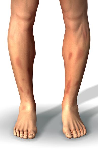 узловатая эритема на ноге