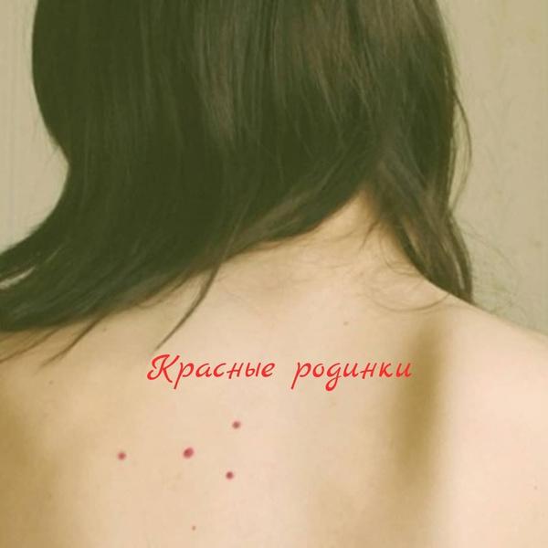 Фото №2 - О чем говорят красные точки-родинки на теле, рассказала дерматолог Мошкова