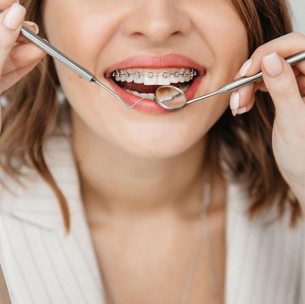 Фото №6 - Вместо брекетов: 3 альтернативных способа сделать зубы ровными