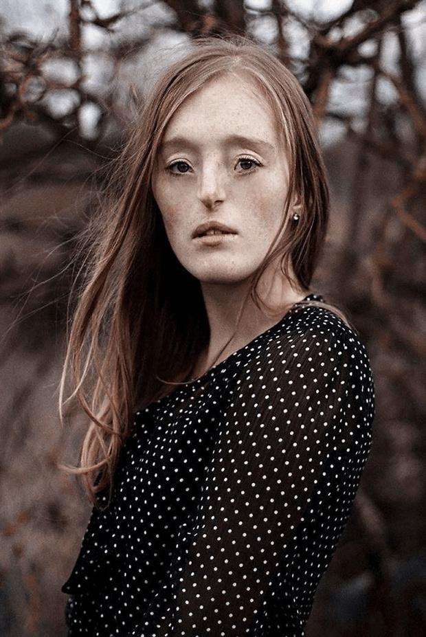 Фото №9 - 10 невероятных красавиц с уникальными особенностями внешности
