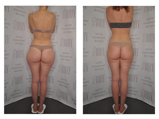 Фото №7 - Манупластика: как похудеть с помощью массажа