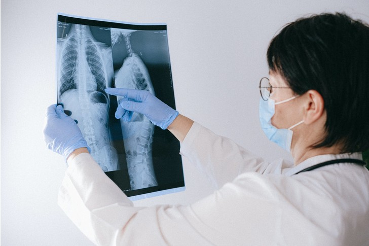 Как выявить рак легкого на ранней стадии