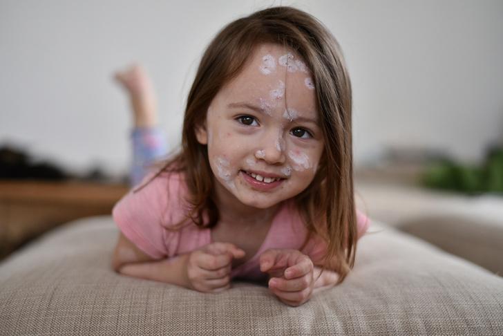 Фото №2 - Сыпь у ребенка: лечим кожу снаружи и изнутри