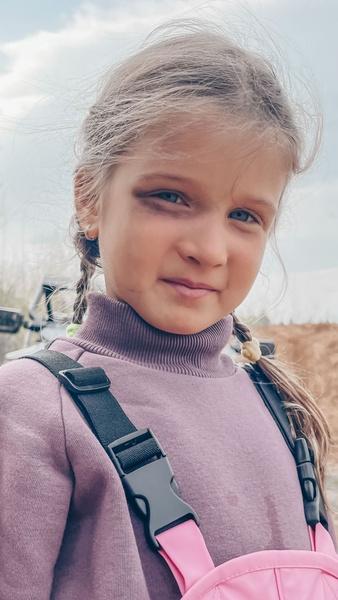 Фото №3 - На фоне слухов о разводе Ксения Бородина отдала дочь мужу с синяком на лице