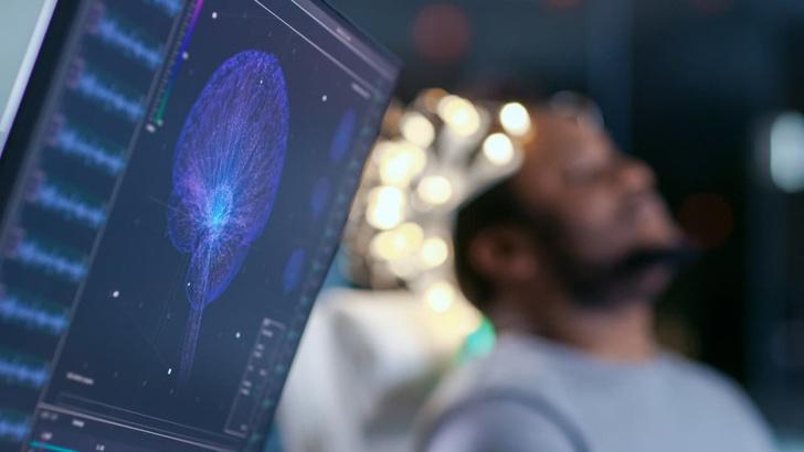 Фото №1 - «Мозговой туман» после коронавируса: что это такое и кого он атакует, объяснили врачи