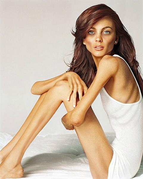Фото №1 - Побочный эффект анорексии: удовлетворение от похудения может усугубить болезнь