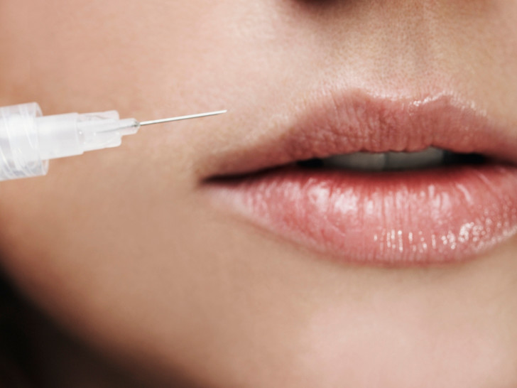 Фото №3 - Что нужно знать о старении губ, и как его предотвратить