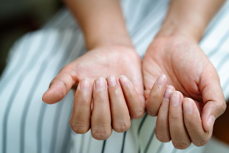 Фото №2 - Пять способов определить COVID-19 по внешнему виду ногтей