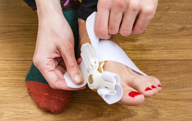Фото №1 - Жизнь без «шишек»: почему появляется косточка на большом пальце ноги и как ее удалить