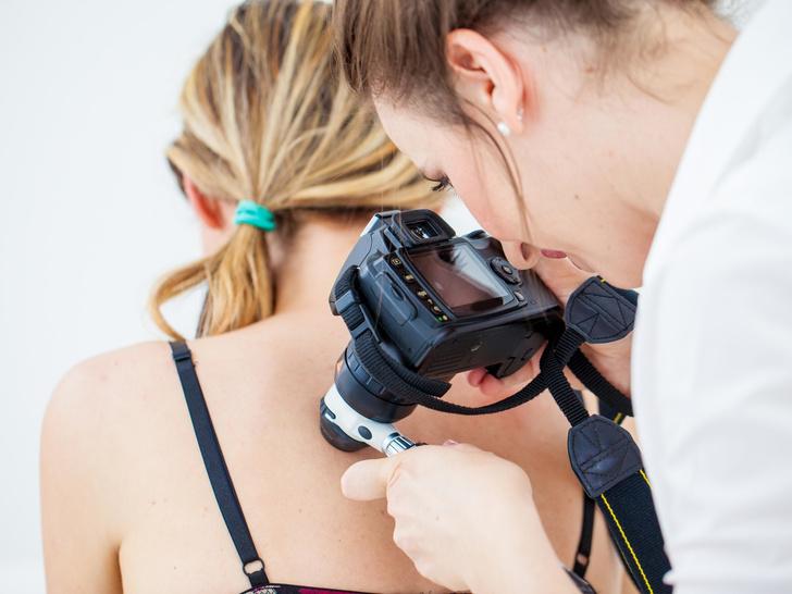 Фото №2 - Тревожные звоночки: 7 веских причин записаться на прием к дерматологу