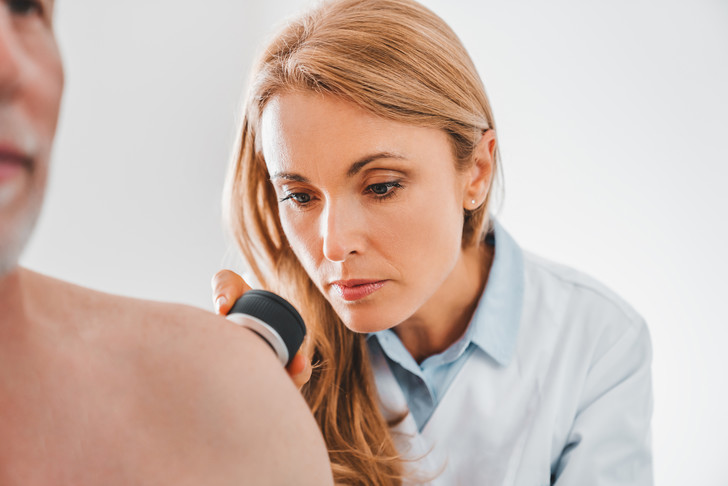 Рак кожи меланома симптомы