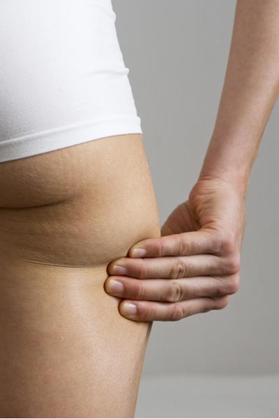 Фото №2 - Прощай, целлюлит! Как улучшить состояние здоровья и тела без физических нагрузок