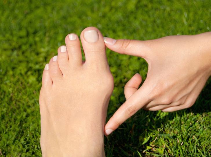 Фото №5 - Сухость, шишки, варикоз: простые способы забыть проблемы и вернуть ногам легкость и красоту