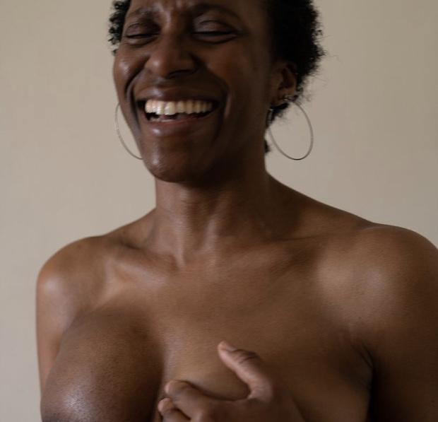 Фото №7 - #Elleгрудь: новый кампейн Stella McCartney с женщинами, пережившими рак