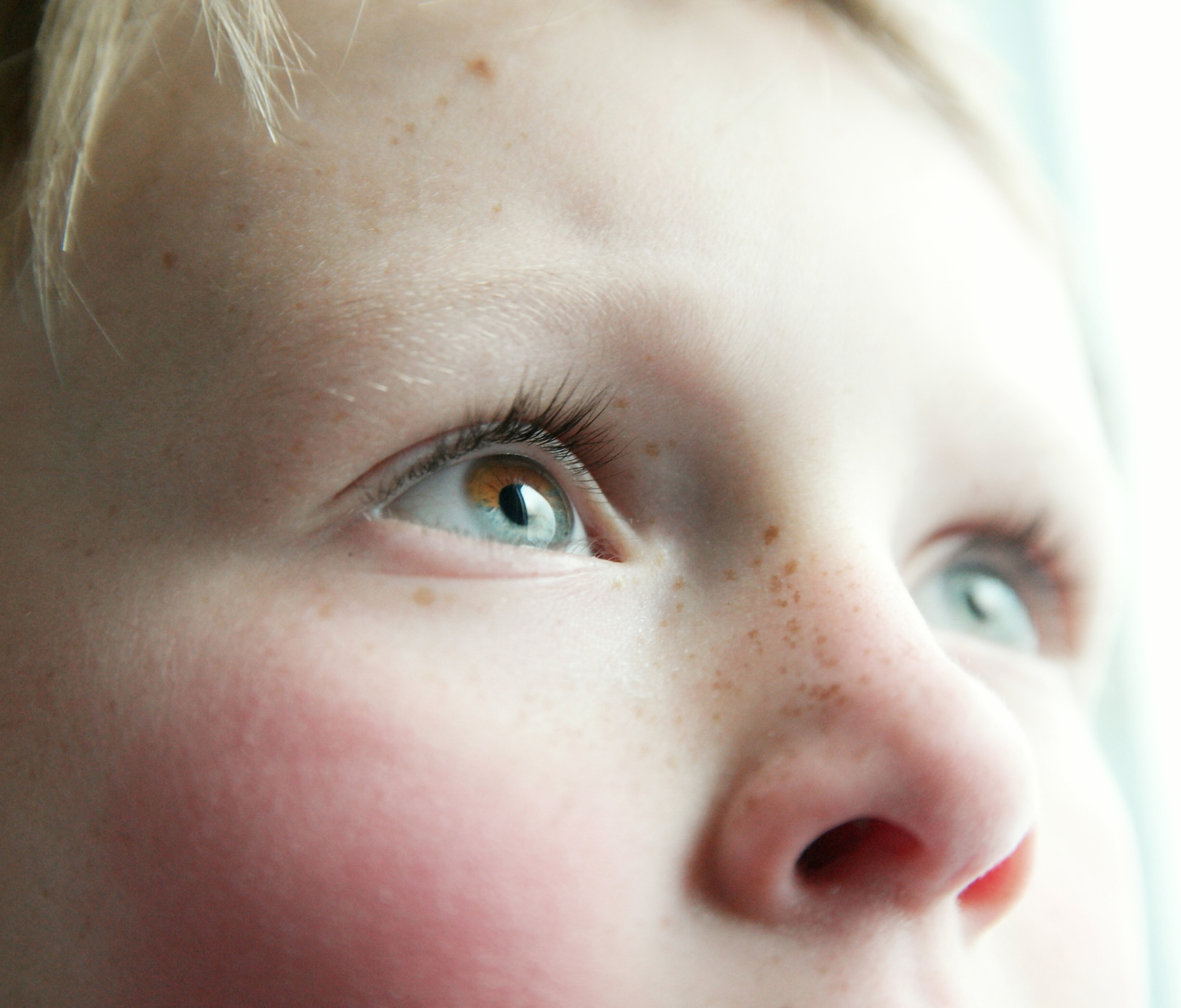 Когда у ребенка разный цвет глаз