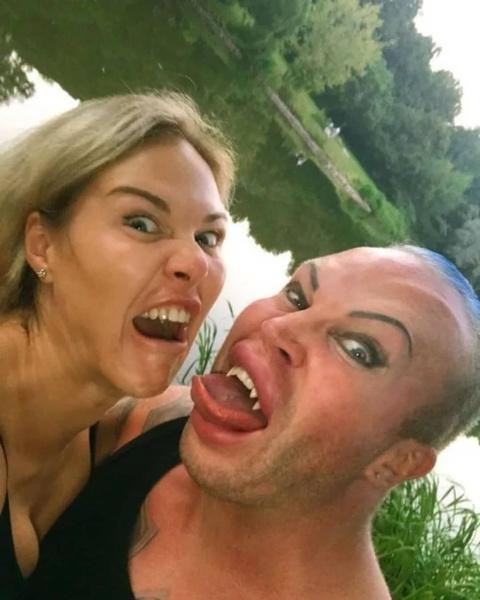 Как будет выглядеть первенец фрик-блогера Саши Шпака и Маси; Саша Шпак до операций, фото