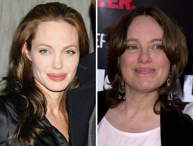Фото №1 - Почему не стоит повторять «подвиг» Анджелины Джоли