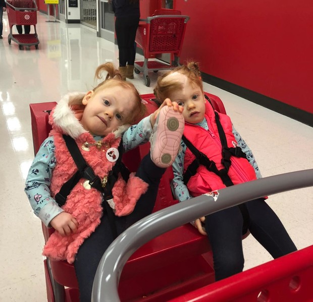 Фото №1 - Рыжики-сестры: как живут близнецы, разделенные в 2017 году