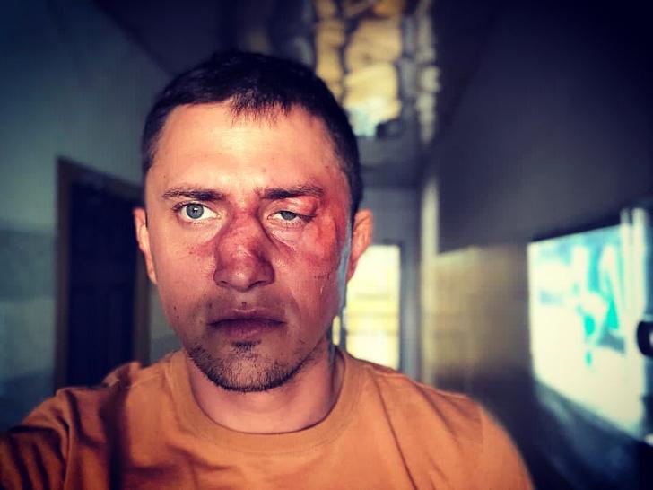 Прилучный показал лицо после пластической операции: последние новости, мирослава карпович, агата муцениеце, избиение, в больнице