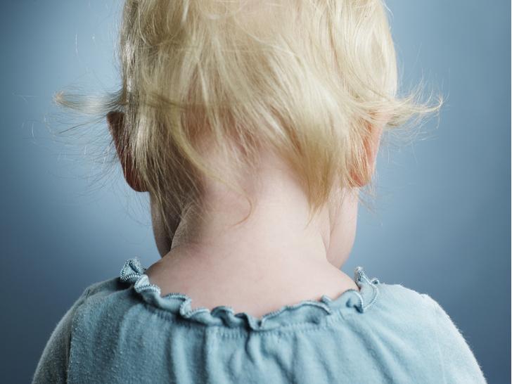 Фото №2 - Кривошея у новорожденных и грудничков: признаки болезни и способы лечения