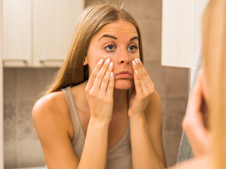 Фото №2 - Не только недосып: о каких проблемах со здоровьем могут говорить темные круги под глазами