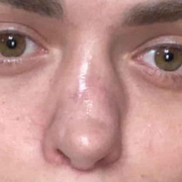 Фото №2 - Экс-участница «Дома-2» с отмирающим носом страдает от облысения