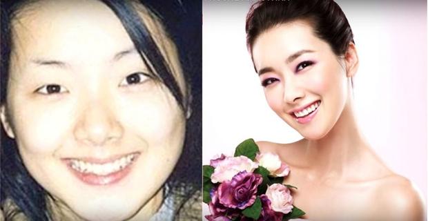 Фото №1 - 7 корейских селебрити, сделавших пластические операции