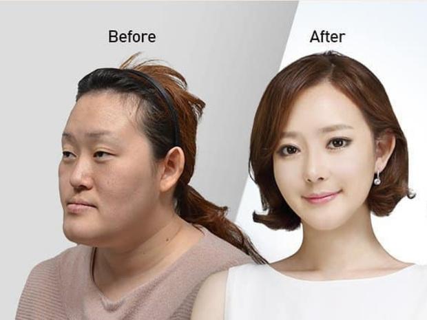 Фото №2 - Без ума от пластики: как кореянки меняют себя до неузнаваемости