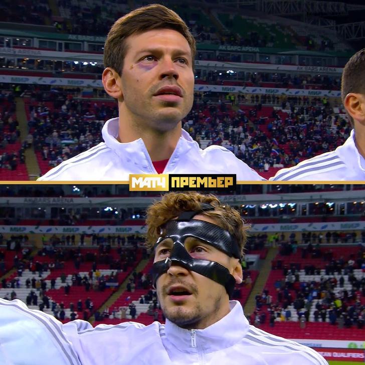 Фото №1 - Федор Смолов вышел на поле с фингалом под глазом. Что случилось с лидером сборной России?