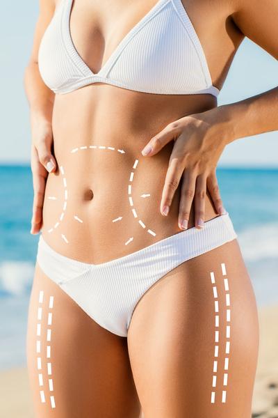 Фото №1 - Как хирурги благодаря липоскульптуре «лепят» идеальные грудь и бедра